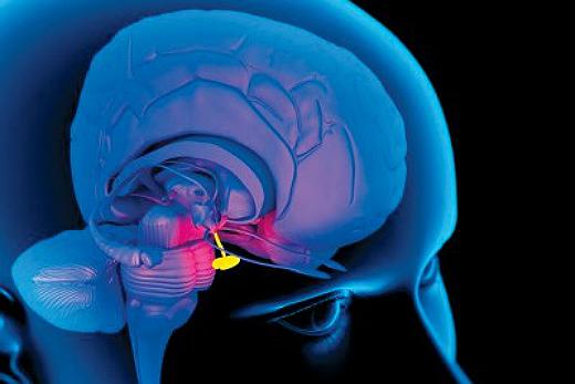 Симптомы опухоли гипофиза