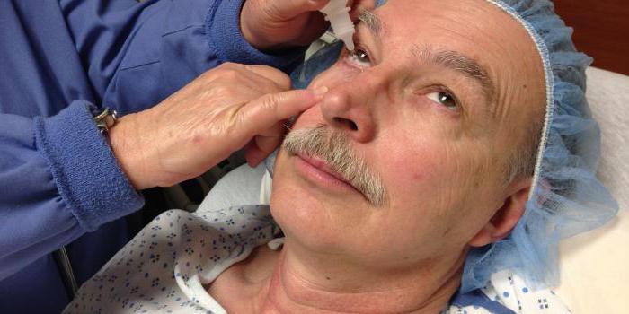 Органы зрения строение глазного яблока