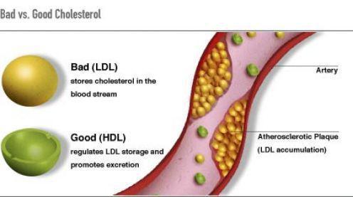 много холестерина в крови
