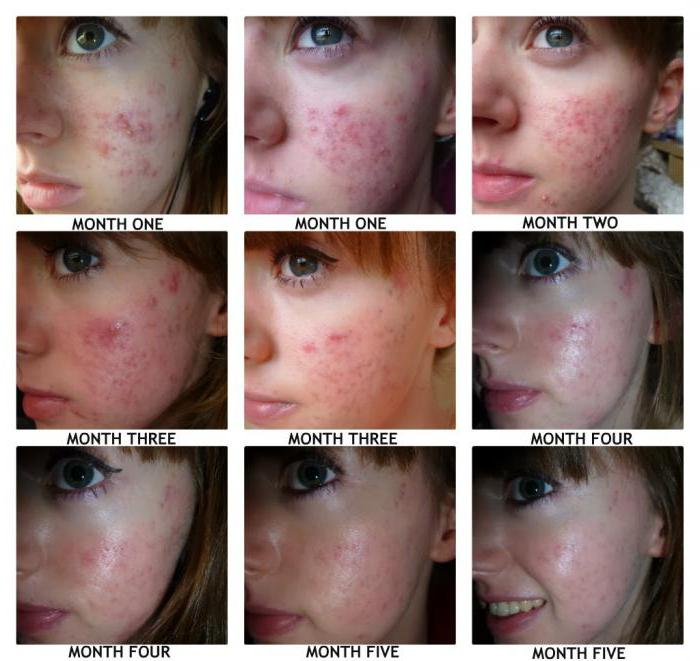 accutane sun after