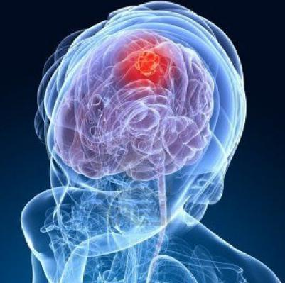 как заболевают раком мозга