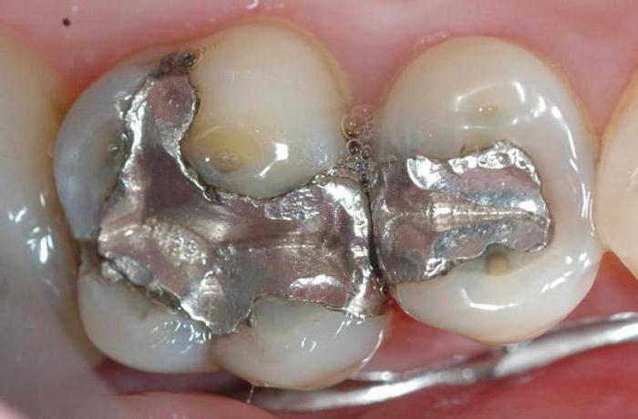 Зубы запломбированные во сне