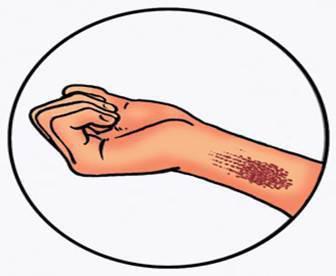 признаки артериального и венозного кровотечения