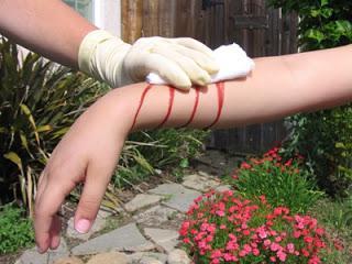 признаки наружного артериального кровотечения