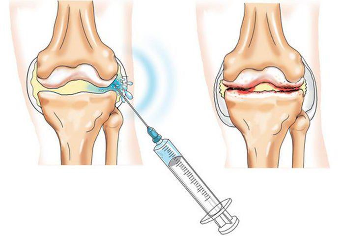 уколы в коленный сустав отзывы