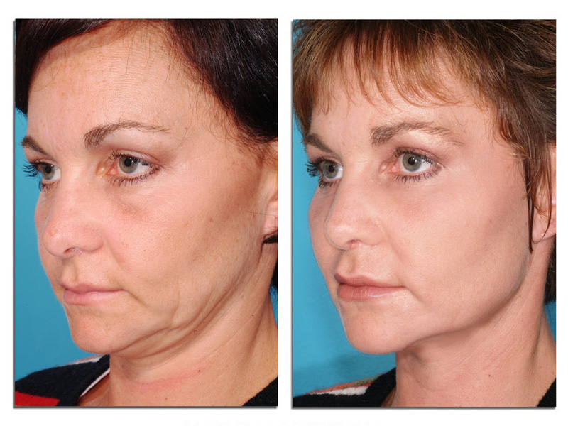 facial-laser-resurfacing