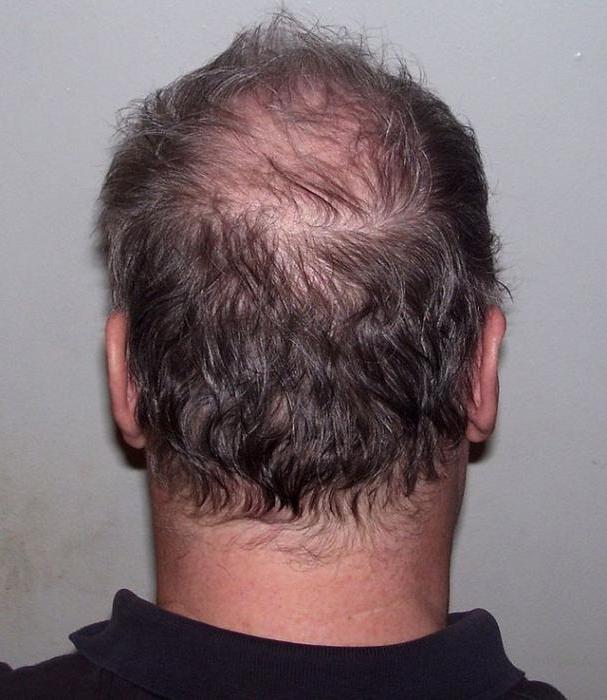 Дайвинес средства по уходу за волосами