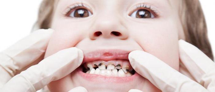 разрушение зубов у детей