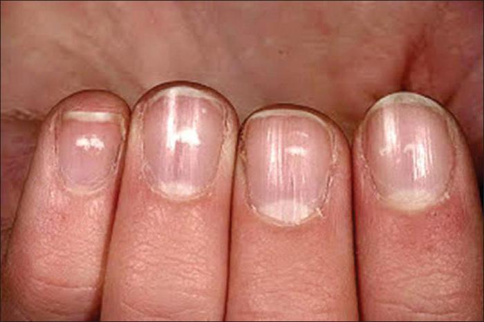 Программа о самом главном с Мясниковым грибок ногтей