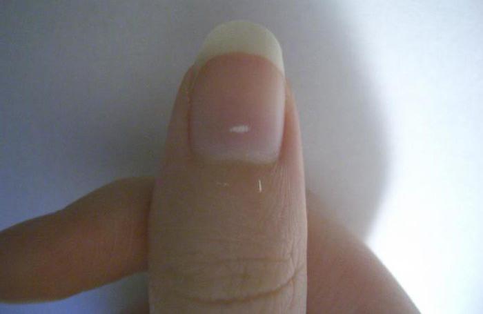 Белые пятна на ногтях пальцев рук: как лечить?