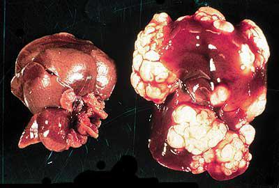 гепатит влияет на потенцию