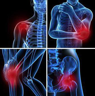 симптомы бурсита тазобедренного сустава