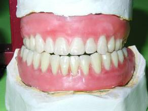 Номер зубов верхней челюсти