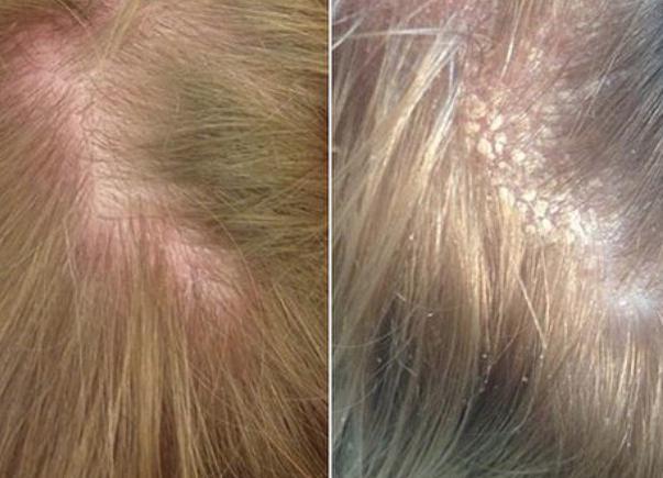 себорея кожи головы лечение шампуни