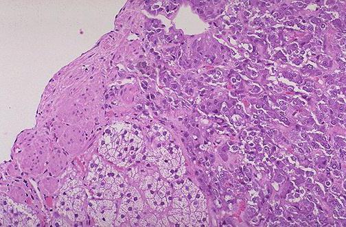 Феохромоцитома – что это такое? Феохромоцитома: симптомы, диагностика, лечение, фото