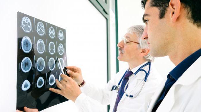 пароксизмальное состояние головного мозга