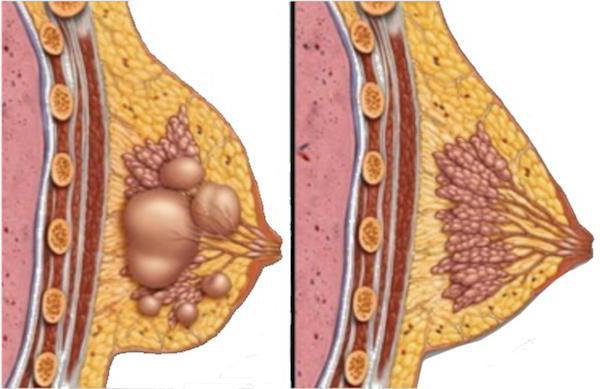 киста грудной железы
