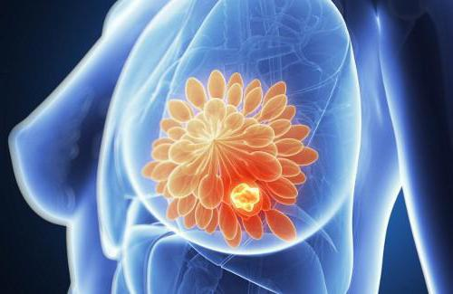 киста грудной железы фото