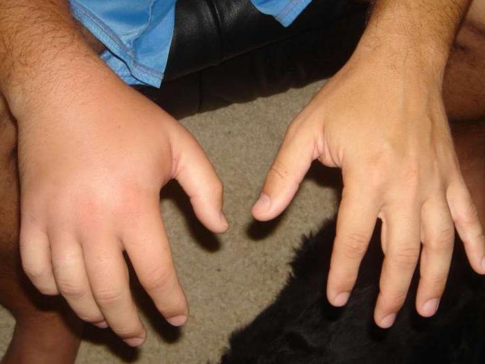 кисть после перелома