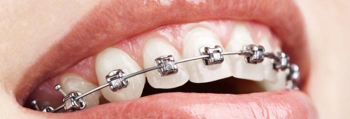 болят зубы после установки брекетов