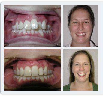 брекеты до и после фото