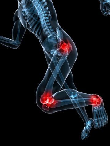 как проявляется ревматизм ног