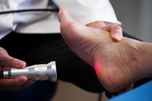 пяточная шпора лечение лазером отзывы