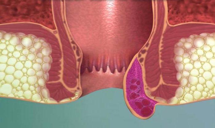 Воспаление геморроидальных вен