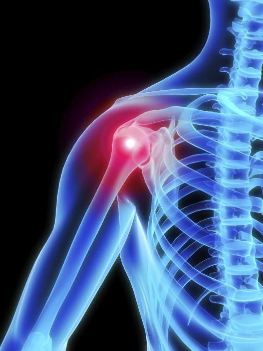 Артроз плечевого сустава симптомы и лечение заболевания