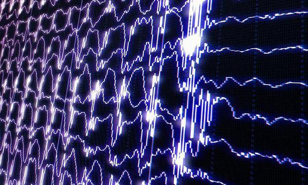 электроэнцефалограмма головного мозга что показывает
