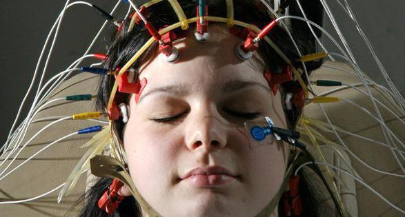 что показывает электроэнцефалограмма головного мозга