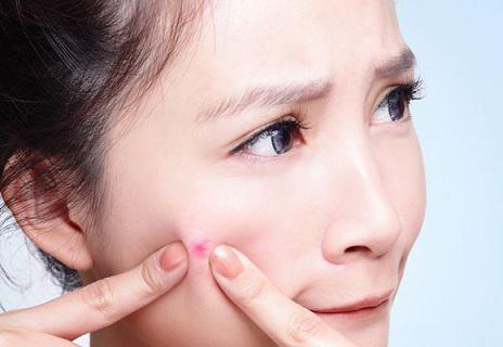 Прыщи на щеках причины и лечение