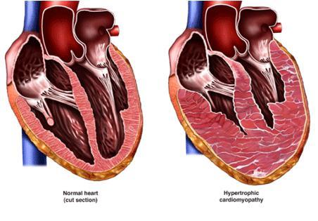 Гипертрофия левого желудочка сердца: лечение народными средствами ...