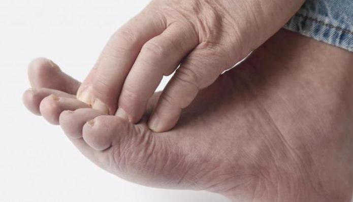 Чешутся пальцы на ногах что это значит 13