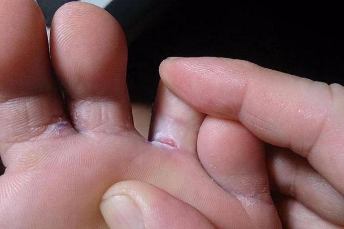 Чешутся пальцы на ногах что это значит 16