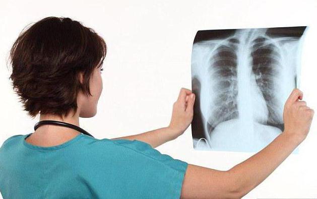 хронический кашель причины