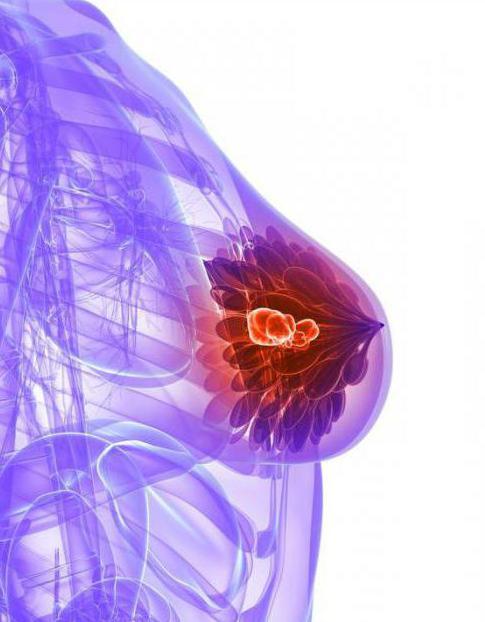 Микрокальцинаты в молочной железе - что это такое