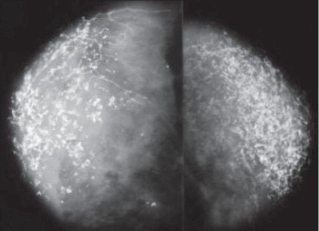 Рассеянные микрокальцинаты в молочной железе