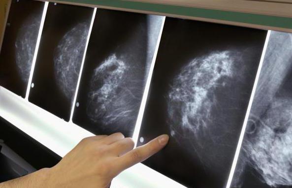 Болезненное уплотнение в молочной железе