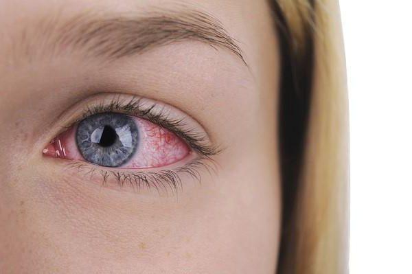 зиртек средство от аллергии