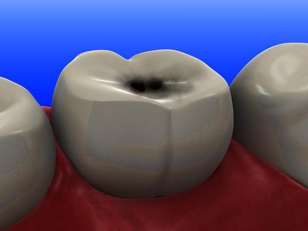На зубах черные точки