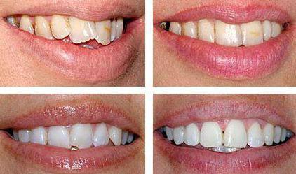 стоматологическая капа