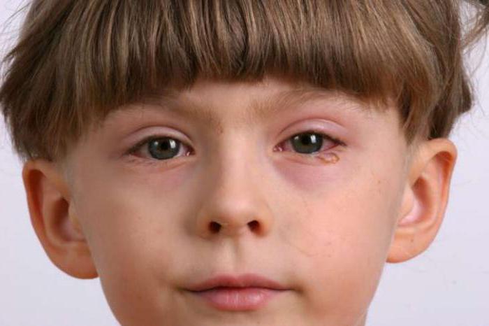 Антигистаминные препараты для глаз