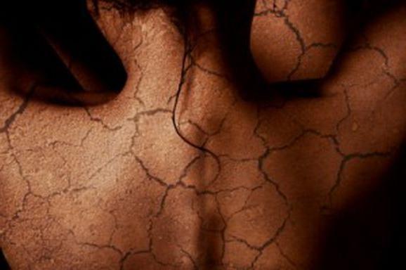 Шелушащаяся кожа на теле