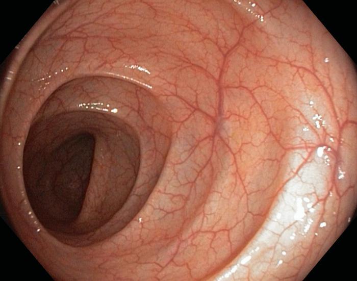 Виртуальная колоноскопия кишечника или мрт кишечника thumbnail