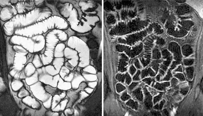 мрт желудка и кишечника томография в диагностике