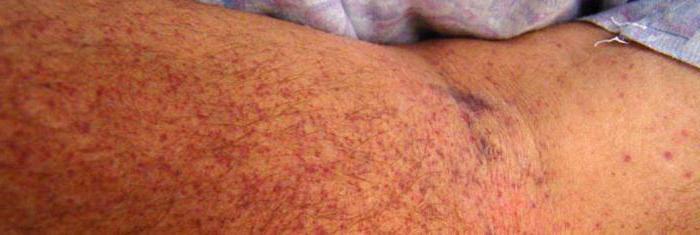 тромбоцитопеническая пурпура у взрослых фото