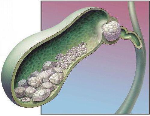 камень в протоке желчного пузыря
