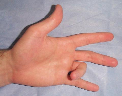болезнь Нотта операция