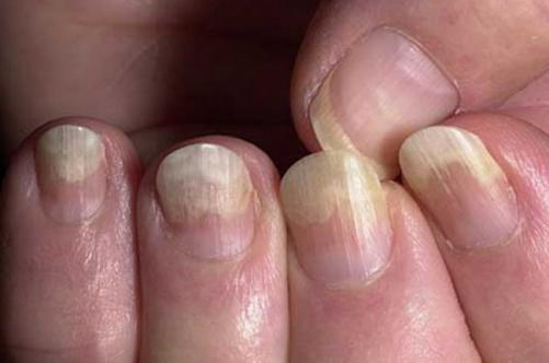 онихомикоз ногтей лечение препараты недорогие но эффективные